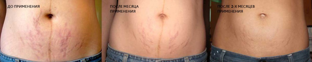 resultat-mumio