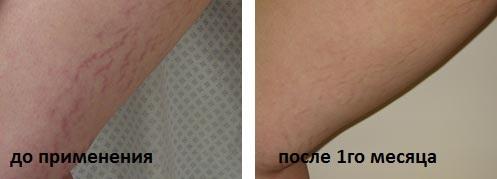 крем с мумие от растяжек отзывы фото до и после