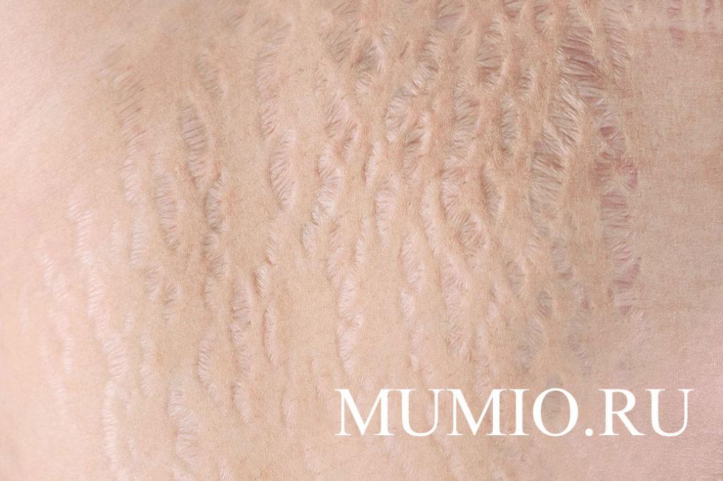 Мумие от растяжек