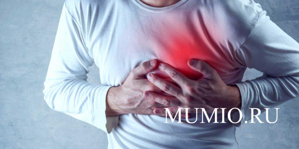 Мумиё после инфаркта